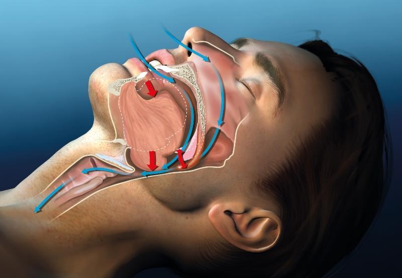 schnarchen-medizinische-illustration